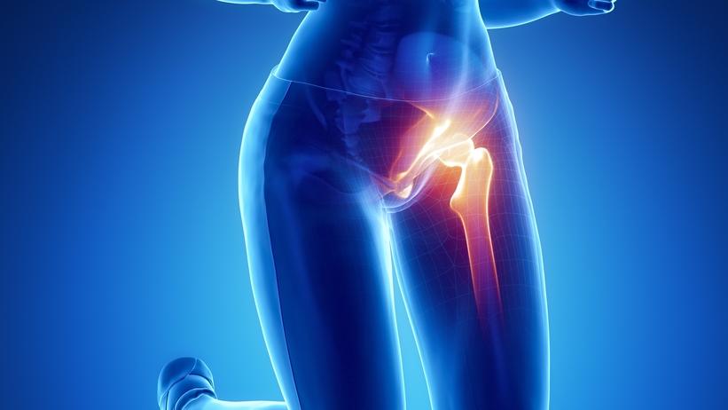 a csípőízület éles fájdalma