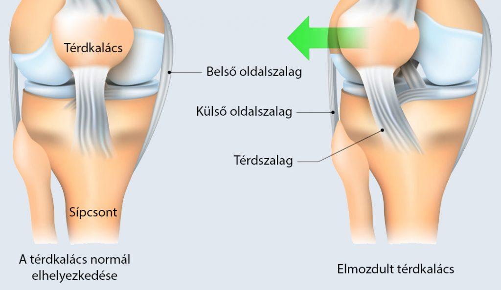 fájdalom esetén a térdízület masszírozható