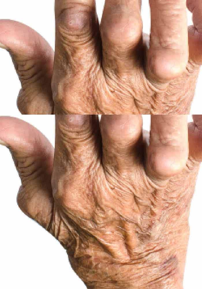könyökízületek rheumatoid arthritisben