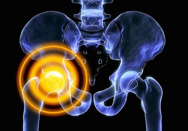 milyen kenőcs segít a csontritkulásban