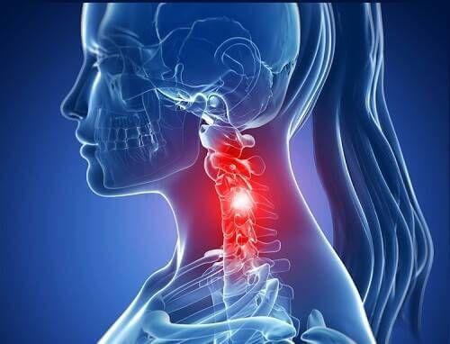 spondylosis arthrosis kezelés)