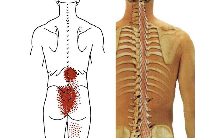 hogyan lehet megkülönböztetni az ízületi fájdalmakat és az izmokat)
