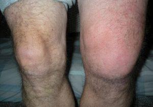 könyökízületek rheumatoid arthritisben a láb kicsi ízületeinek ízületi ízületi gyulladása