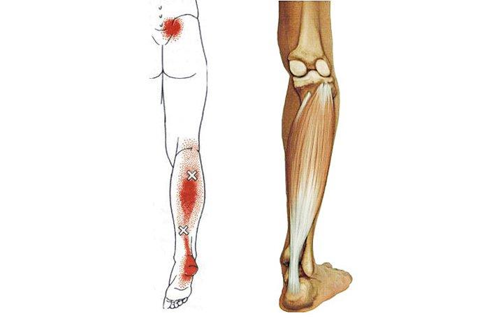 lapos lábú artrózis a térd)