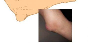 csontritkulás géllel térd artrózis 2 fokos kezelési módszerek