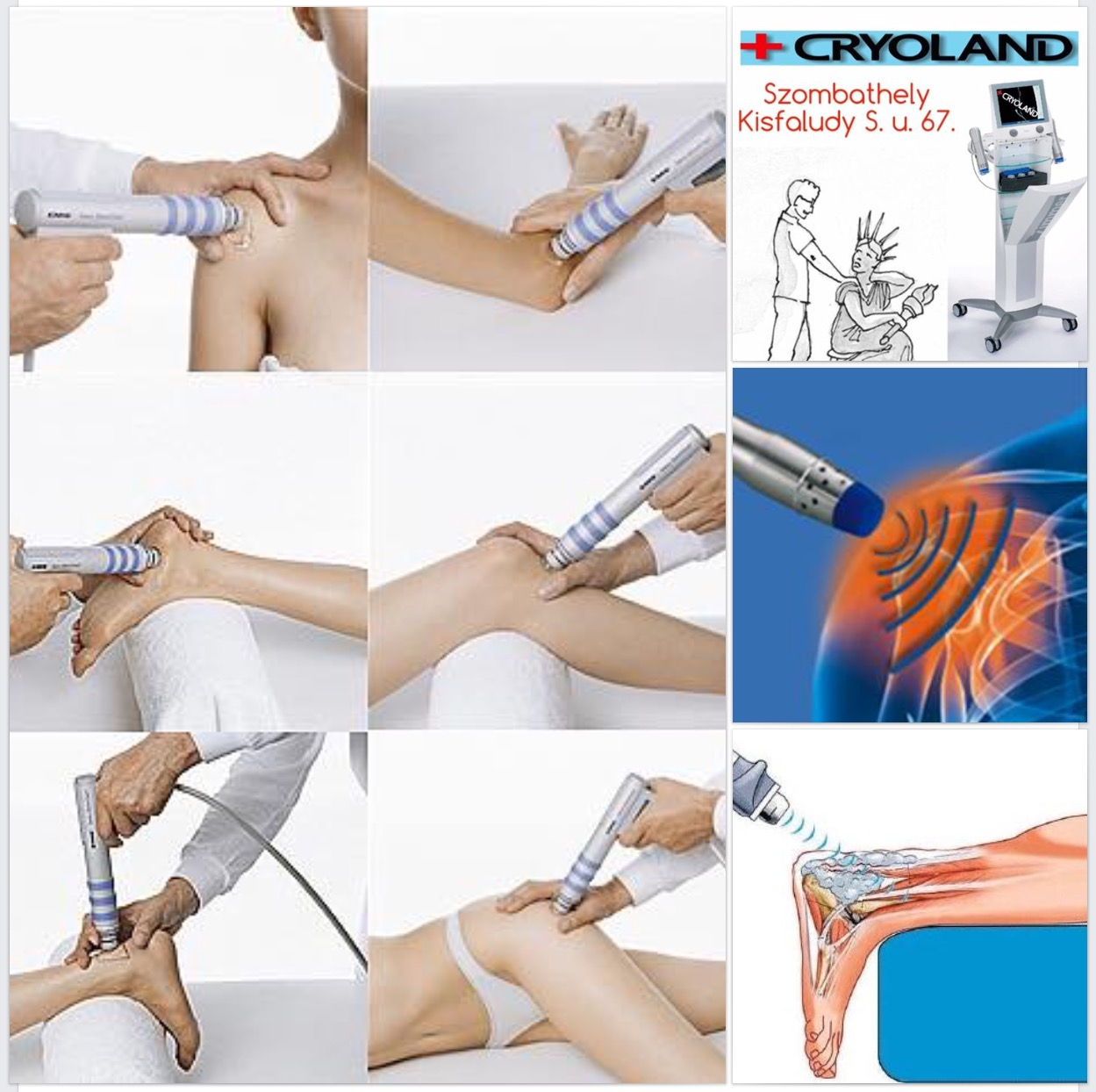 sokkhullám-kezelés az ízületi kezelés)