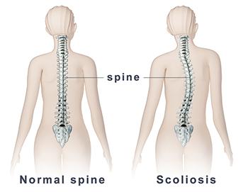 csípő görbület kezelése ízületi kimerültség ízületi fájdalom
