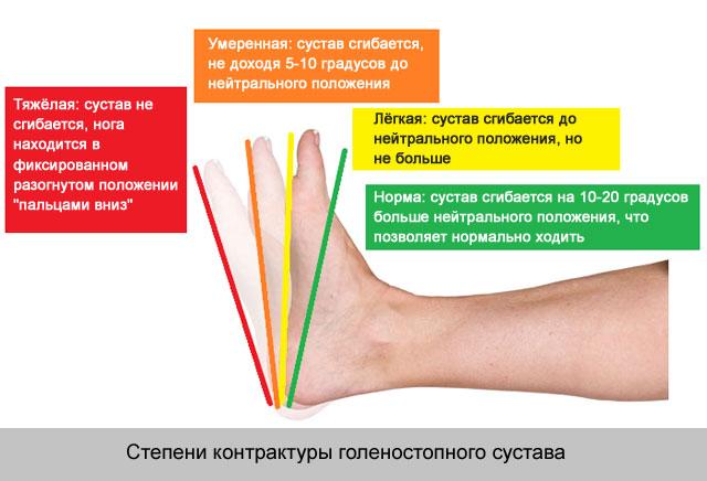 hogyan kezeljük az ízületkárosodást)