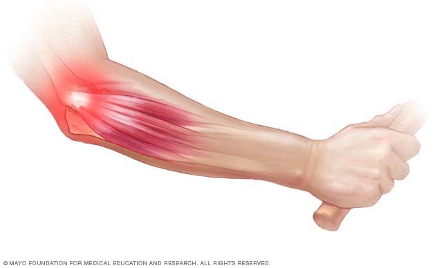 csukló epicondylitis kezelése)