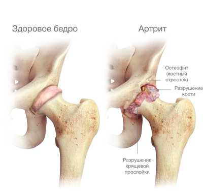 csípő-nyárs kezelés)