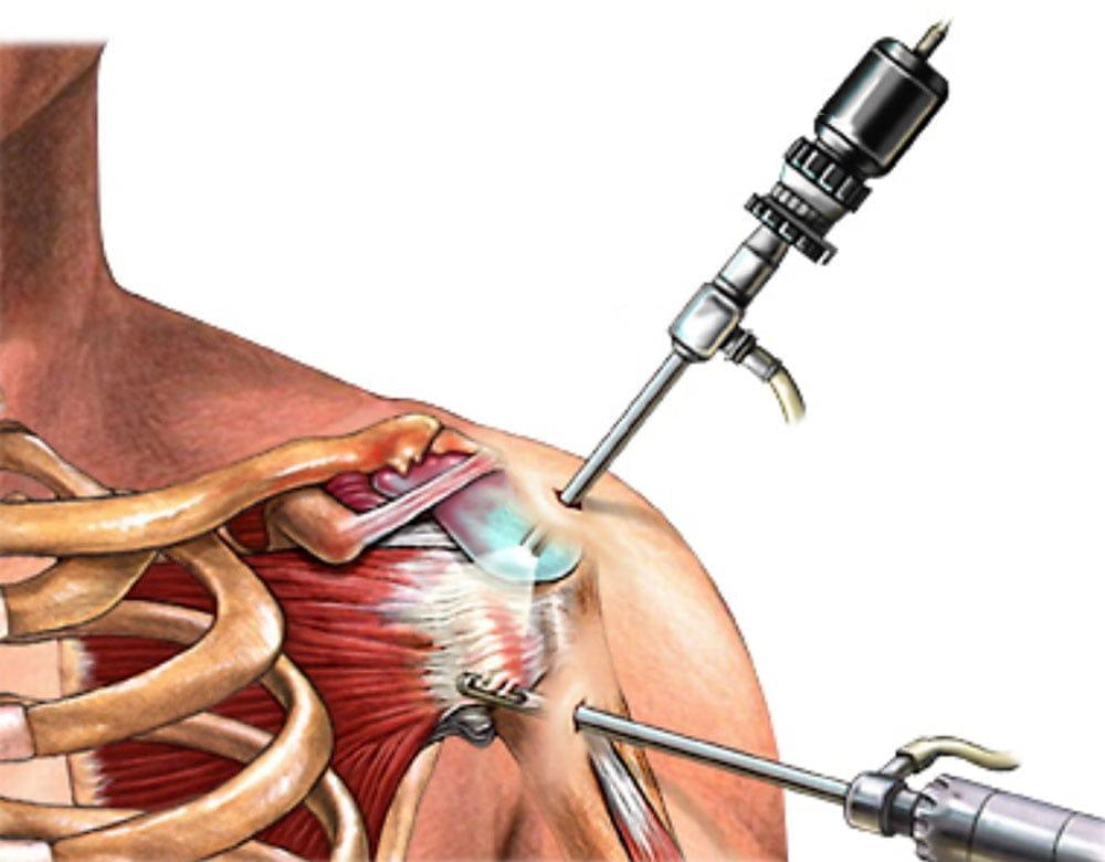 a csípőízület inak gyulladásának kezelése végtagi csontok és ízületek betegségei