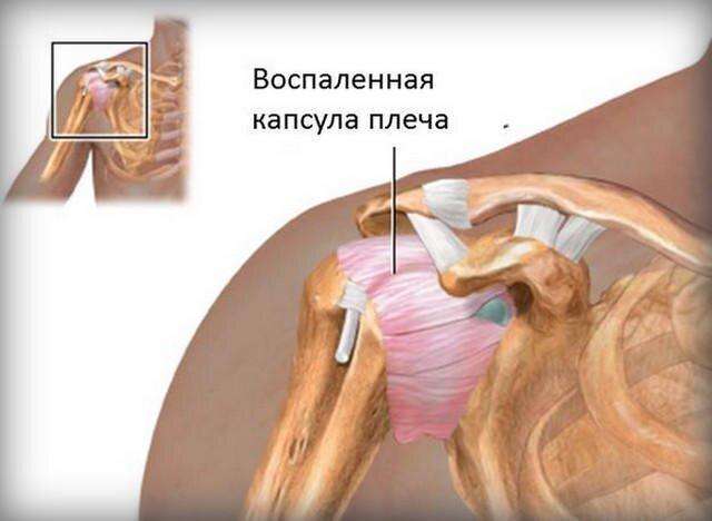 fáj a bal kéz vállának ízülete a hüvelykujj kezének kezelése