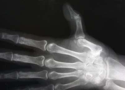 arthrosis kezelés konzervatív kezelés)