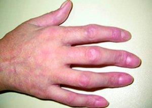 kötőszöveti betegségek szisztémás lupus erythematosus vicc az ízületi fájdalmakról