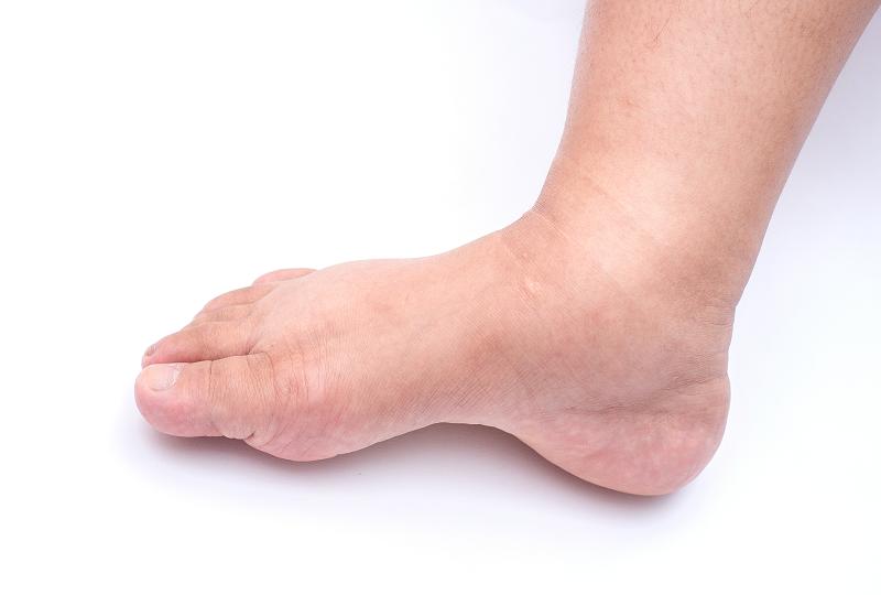 kezelés duzzadt és fájdalmas láb időszakos bokaízület fájdalom