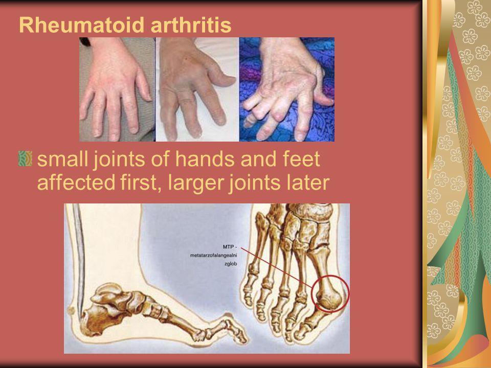 Rheumatoid arthritis – egy módszer, mely segíthet   rozsakert-egervar.hu