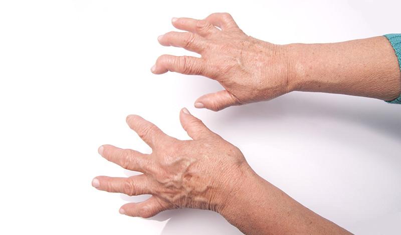 ízületi károsodás stádiumában reumatoid artritisz)