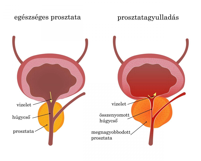 homeopátia a csípőízületi gyulladás kezelésében