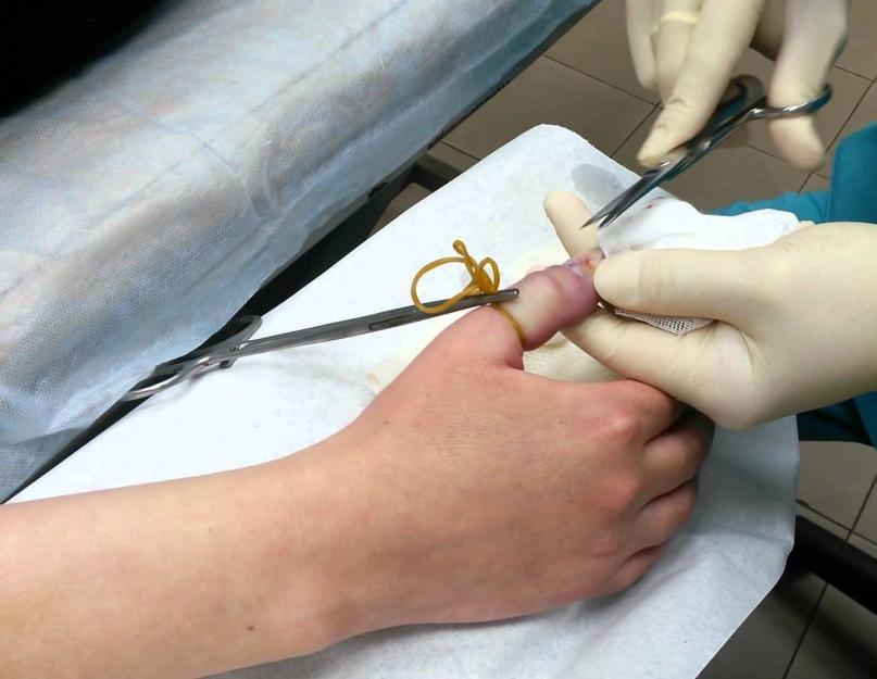 hogyan lehet eltávolítani az ujjízület duzzanatát