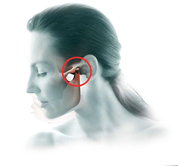 Az állkapocsgyulladás: tünetek, kezelés és megelőzés - Arthritis July