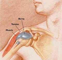 könyök bursitis kezelés