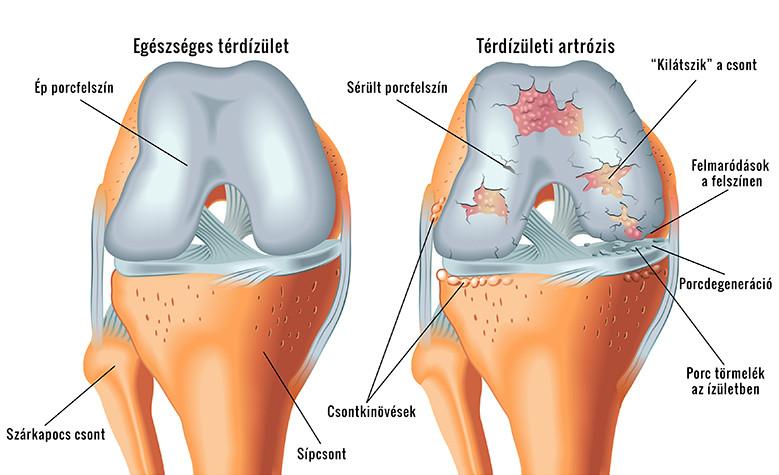 a jobb térdízület fájdalma és ödéma
