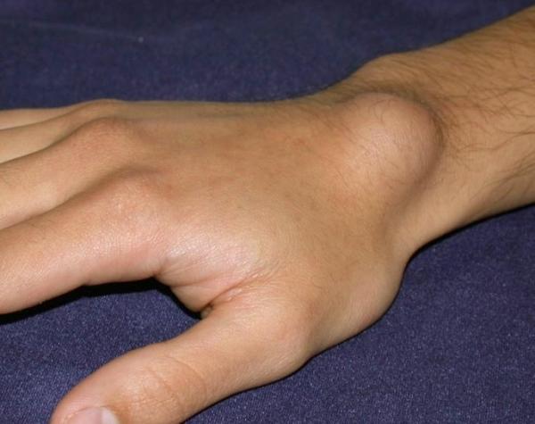 ízületi gyulladás csukló tünetei