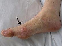 a lábujjak ízületeinek ízületi gyulladása okozza)