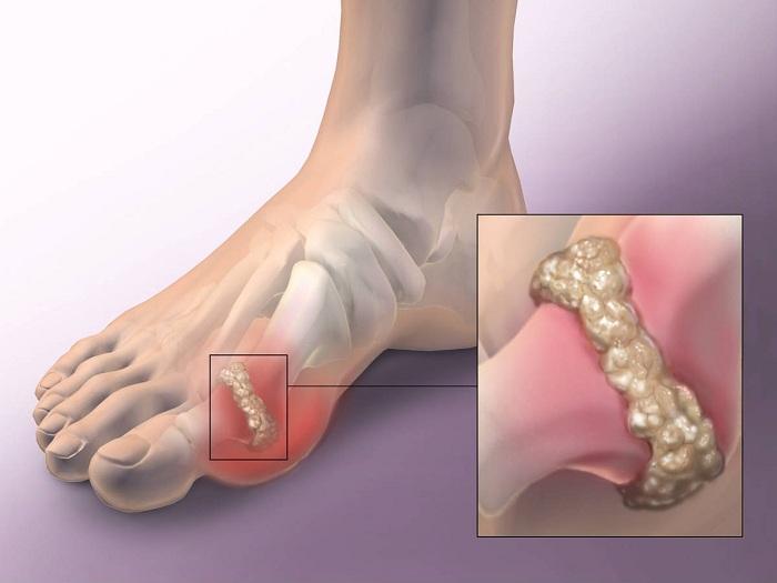 szóda és ízületi fájdalmak kezdő fájdalom a csípőízületekben járás közben