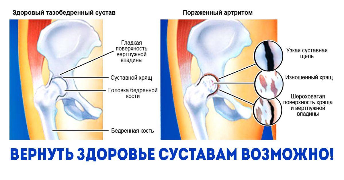 Achillobursitis: a népi jogorvoslatok tünetei és kezelése - Dongaláb