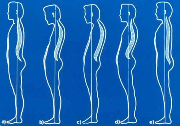 csípő görbület kezelése emésztési és ízületi problémák