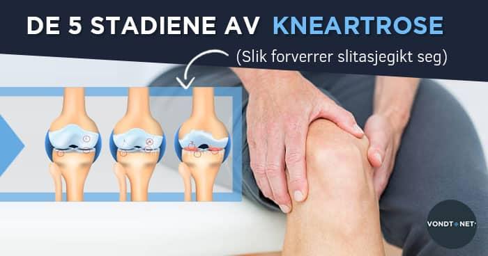 a fájdalom csökkentése a térd osteoarthritisével)