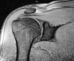 a vállízület arthrosisának megnyilvánulása