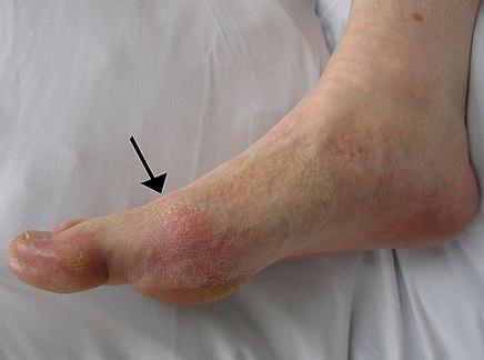 a láb ízületének gyulladása okozza