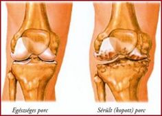 térdízület polyarthritis