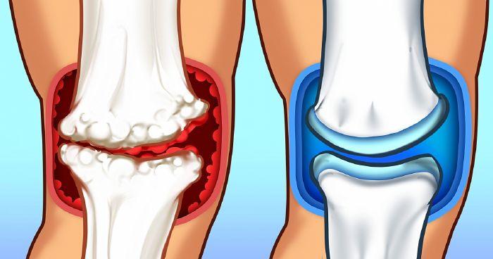 milyen kalciumot kell bevenni az ízületi fájdalmakhoz