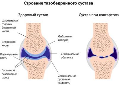 fájdalom a bal láb csípőízületében)