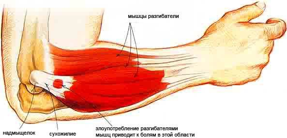 az emberi vállszíj artrózisa)