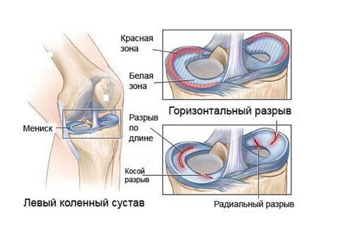 a bal térdízület oldalsó meniszkuszának károsodása)