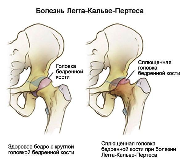 a csípőízület deformáló artrózisa 1 fokos
