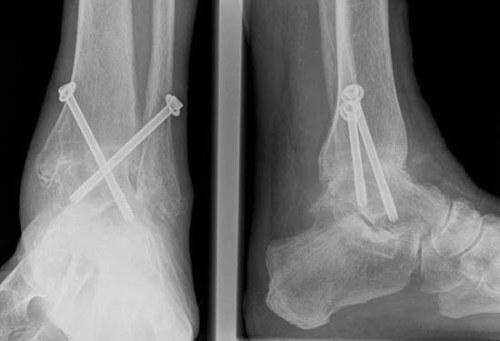 A poszttraumás arthrosis jellemzői és fontos jellemzői