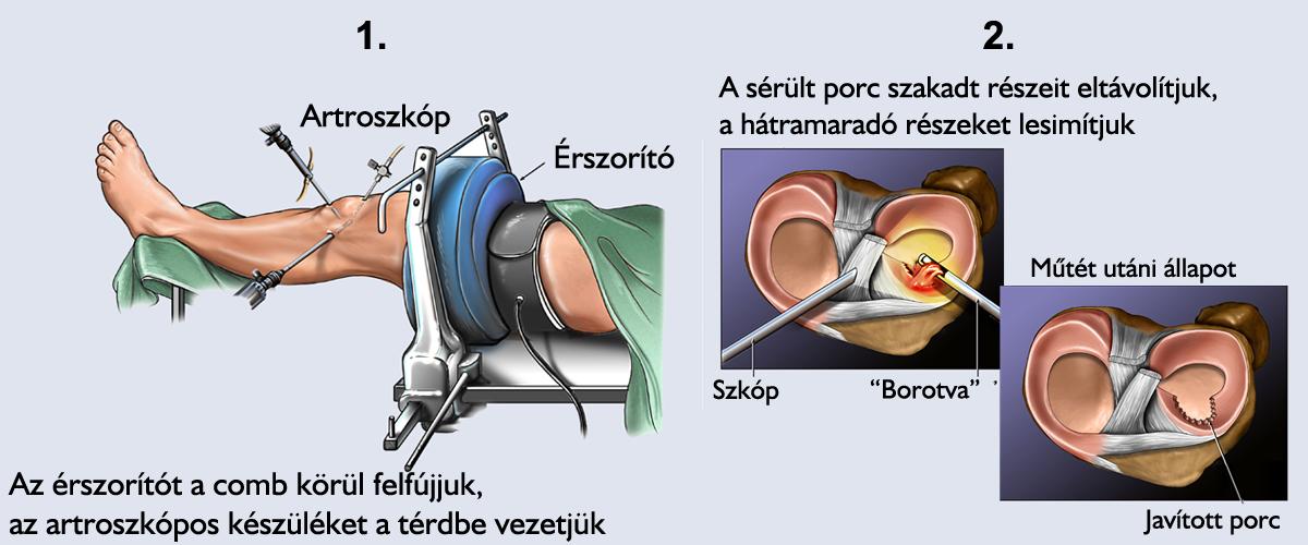 A Stoller belső és mediális meniszkuszának károsodásának mértéke (2 és 3 fok) - Térd