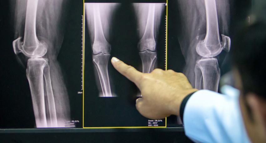 a térd artrózisának kezelése tablettákkal)