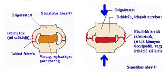 a csigolyák ízületi ízületi l3-s1