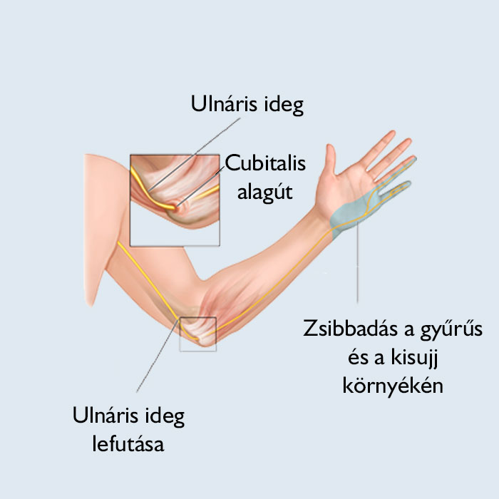 duzzadt ujjízület kezelése