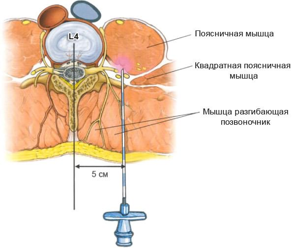 milyen kenőcsök kezelik az ágyéki osteochondrozist)