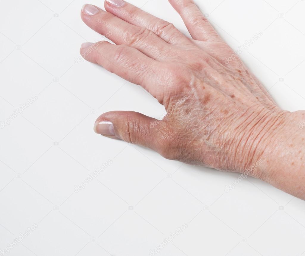 a hüvelykujj artritisz súlyosbodása