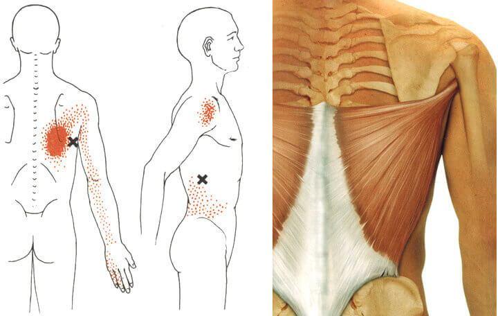 Arthrosis és Flatfoot 2. fokozat - Arthritis July