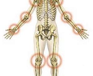 Gyógyír a térdfájásra Térdfájdalom zselatin kezelése