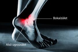 fájdalom a bokaízületben feszítés után